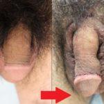 長茎術の傷は、治療直後から本当に目立たないんです!